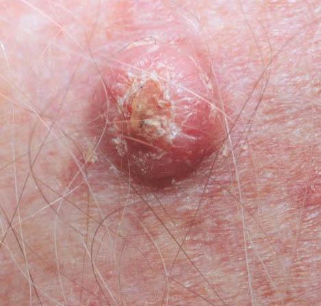 carcinoma squamous vaginal
